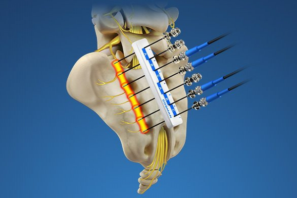 Radio-frequency Pain Treatment
